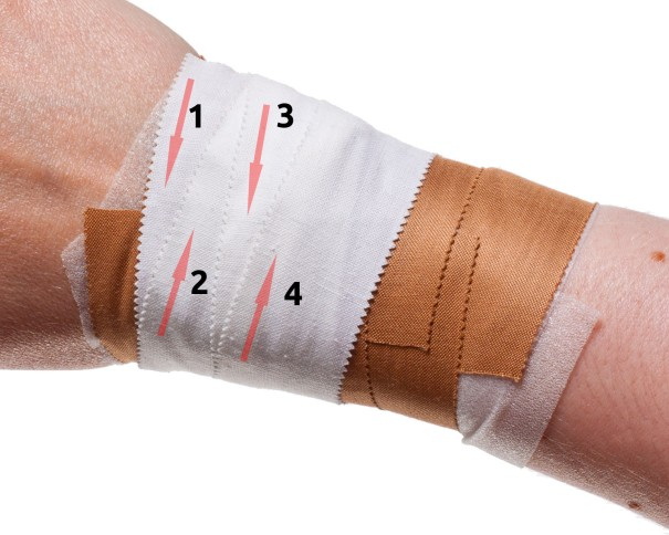 Wrist Taping for Rugby etc.. | Step 5: Zinc Oxide Tape Support | Physical Sports First Aid