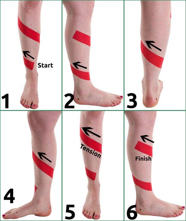 Shin Splint Taping Step by Step