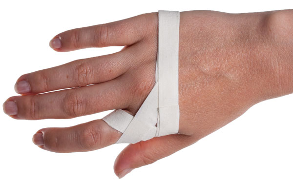 how to tell if your finger is sprained
