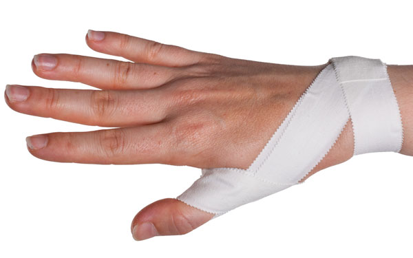 How You Can Treat a Sprained Thumb - Doctors Health