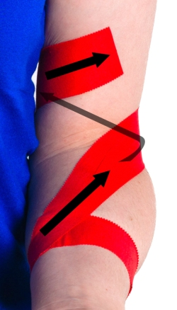 Tennis Elbow Taping Steps 3 and 4 | Physical Sports First Aid